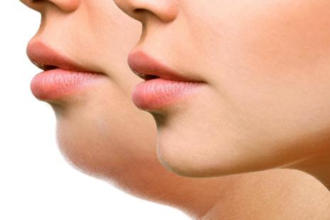 Três formas de acabar com a papada do pescoço